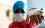 بهبودی 1356 فرزند مبتلا به تومور مغزی در سی سال فعالیت محک